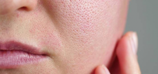 How to Get Rid of Large Pores, oily face